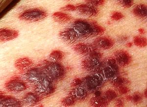 веретенообразные клетки саркомы Капоши