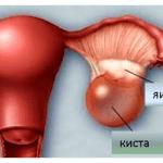 кисты в яичниках