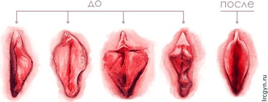 Виды гипертрофии половых губ