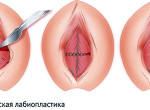 лабиопластики