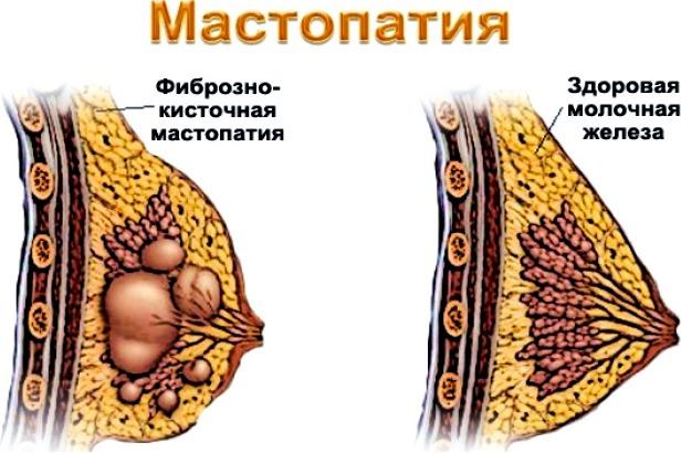 Виды диффузной мастопатии