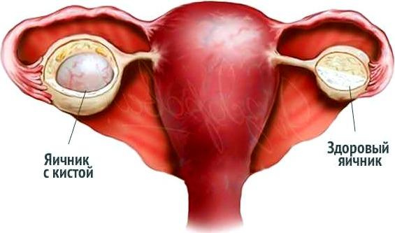 Причины возникновения эндометриоидной кисты