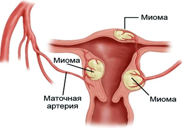 Миома при беременности