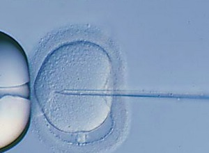 Intra Cytoplasmic Sperm Injection