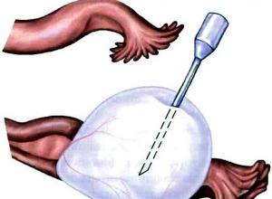 хирургическая операция по удалению кисты яичника