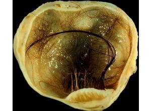 Содержимое Дермоидной кисты яичника