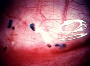 Масло облепиховое при эндометриозе