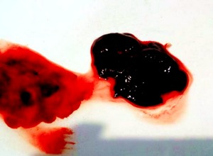Кровотечения со сгустками