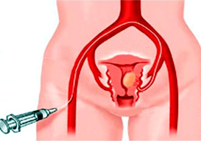 Гистероскопия матки