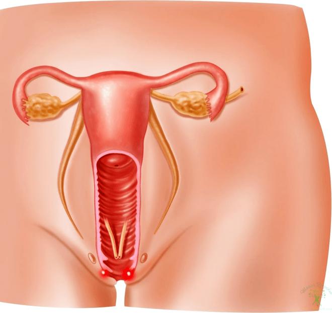 наложение швов гинекология