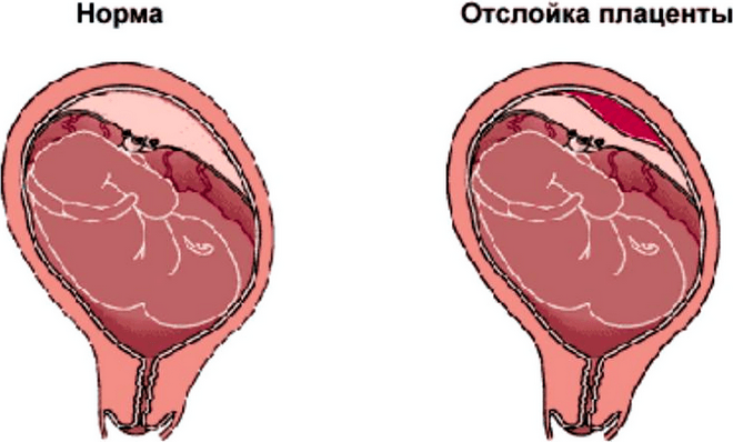 Отслойка плаценты при беременности