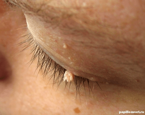 Контагиозный моллюск на теле человека, фото
