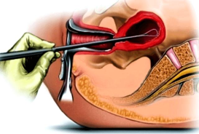 Когда сдавать биопсию по гинекологии