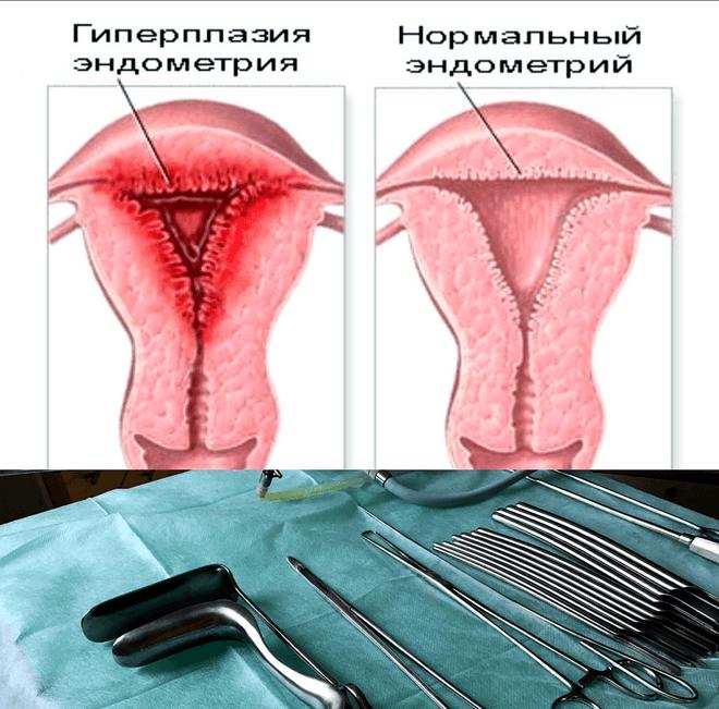 Простая железистая гиперплазия эндометрия - Всё о гинекологии